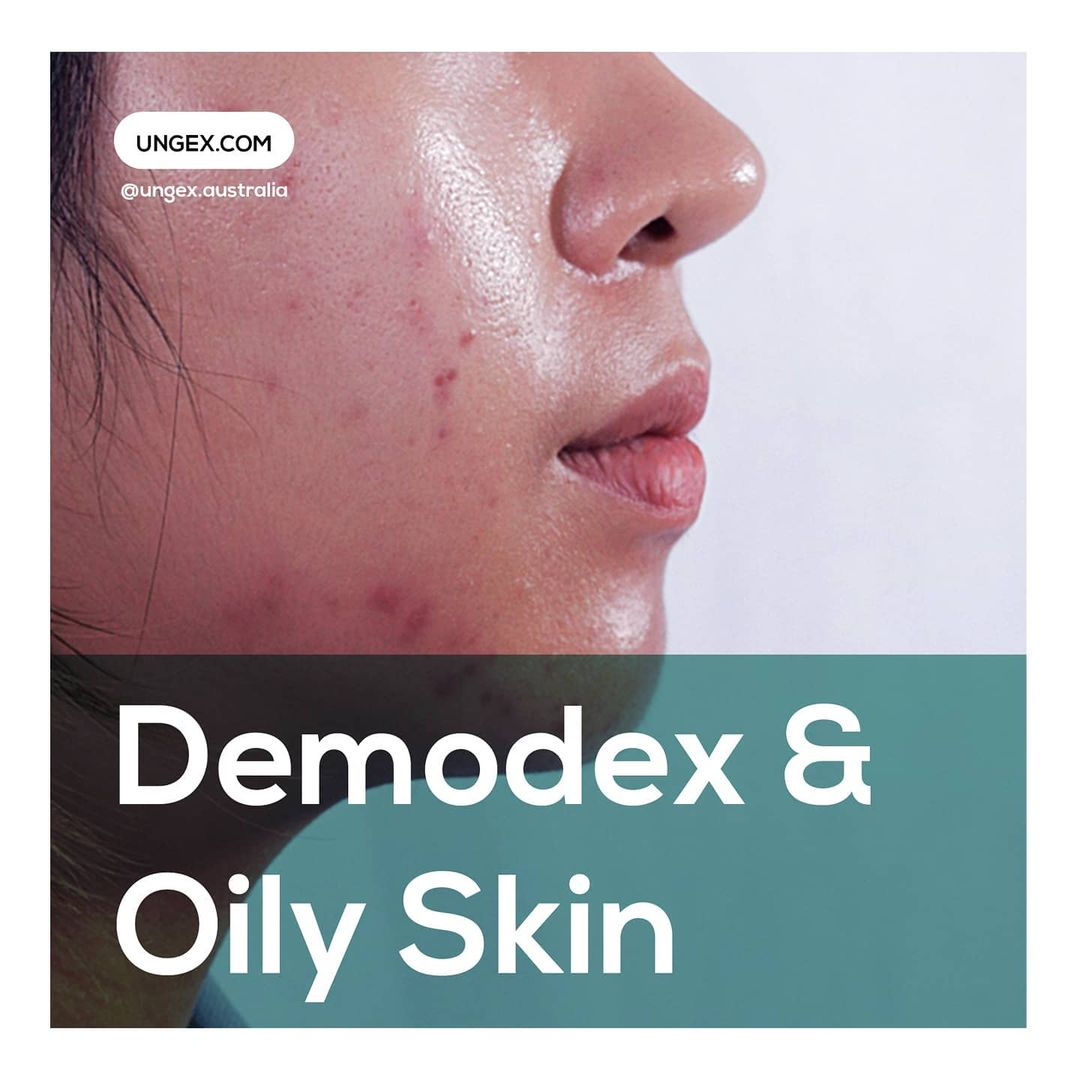Demodex & Oily skin
