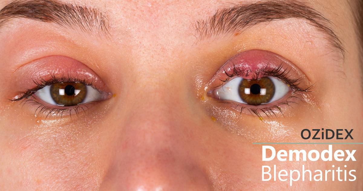 Demodex Blepharitis
