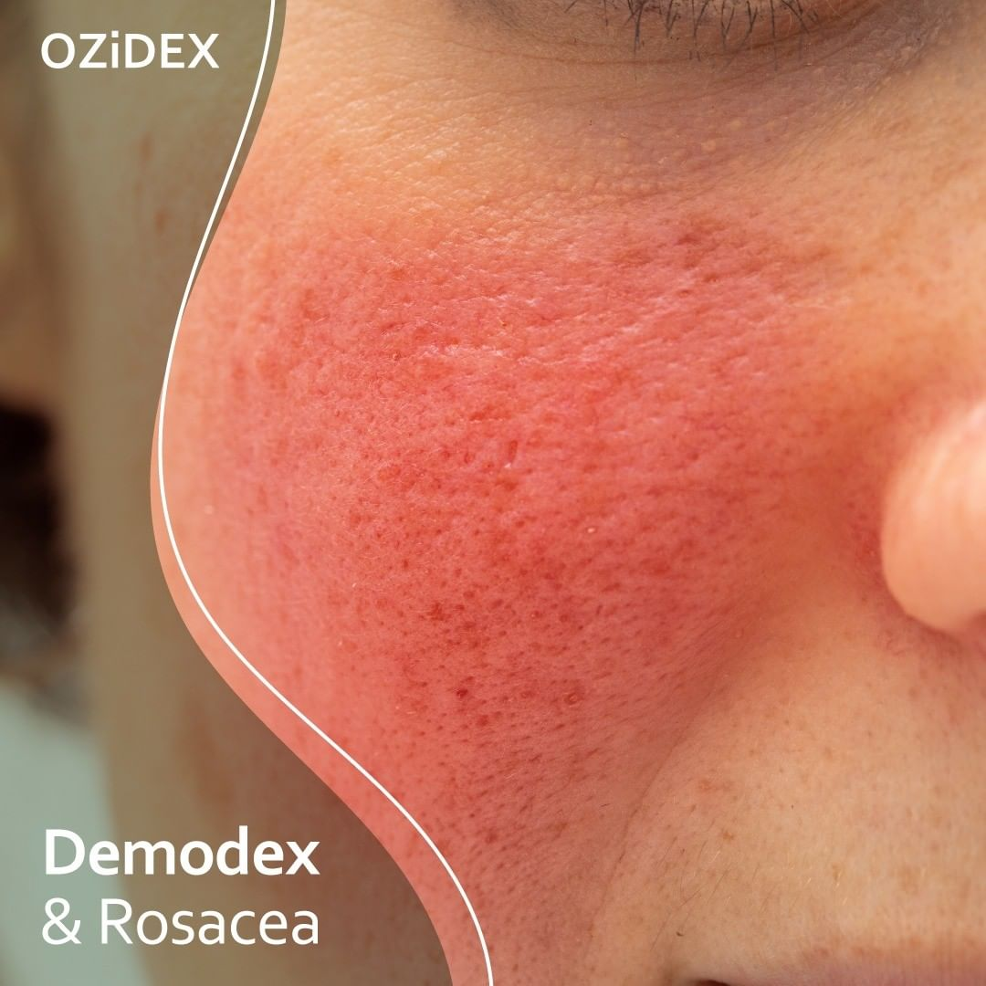 What is Demodex Rosacea?