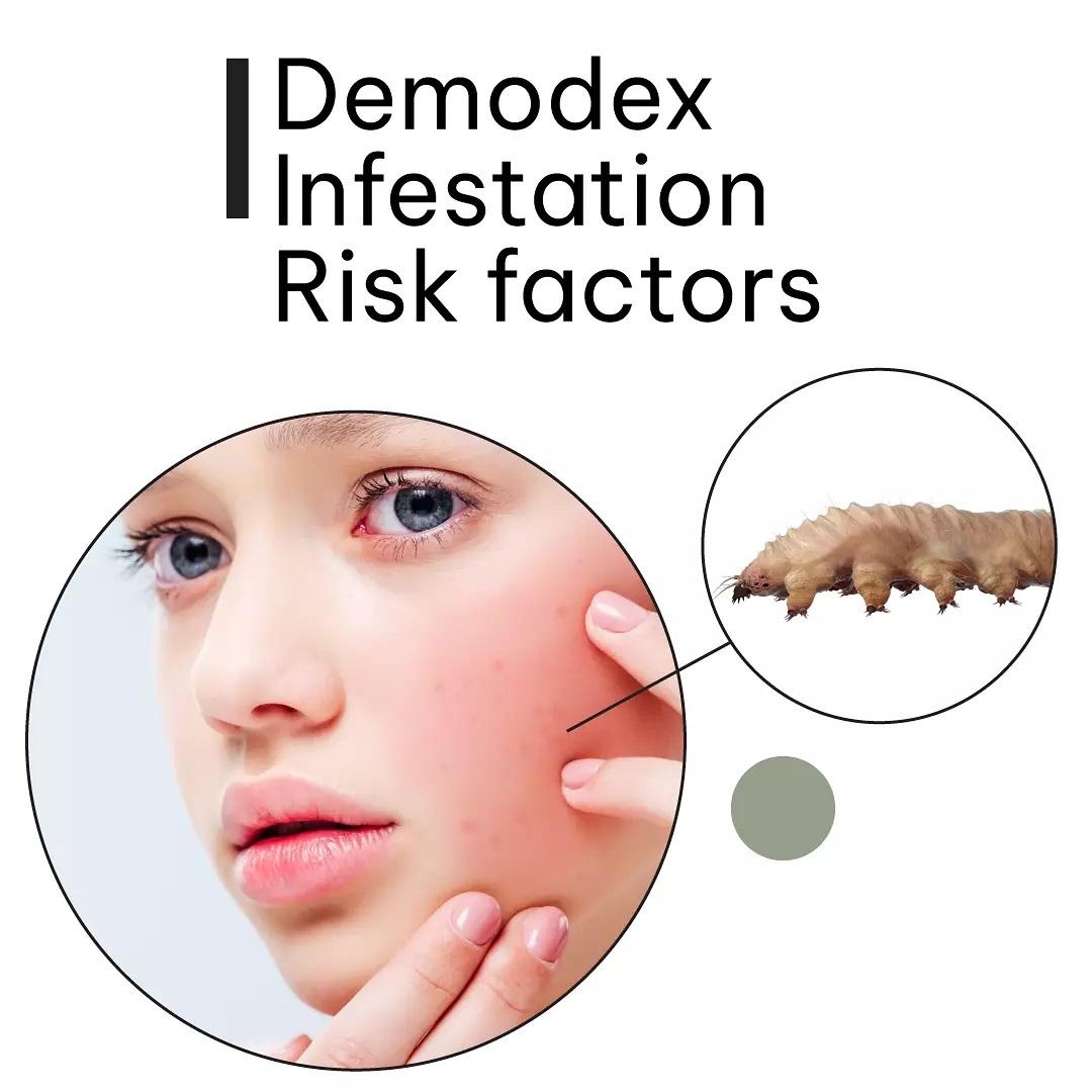 Demodex Infestation Risk factors