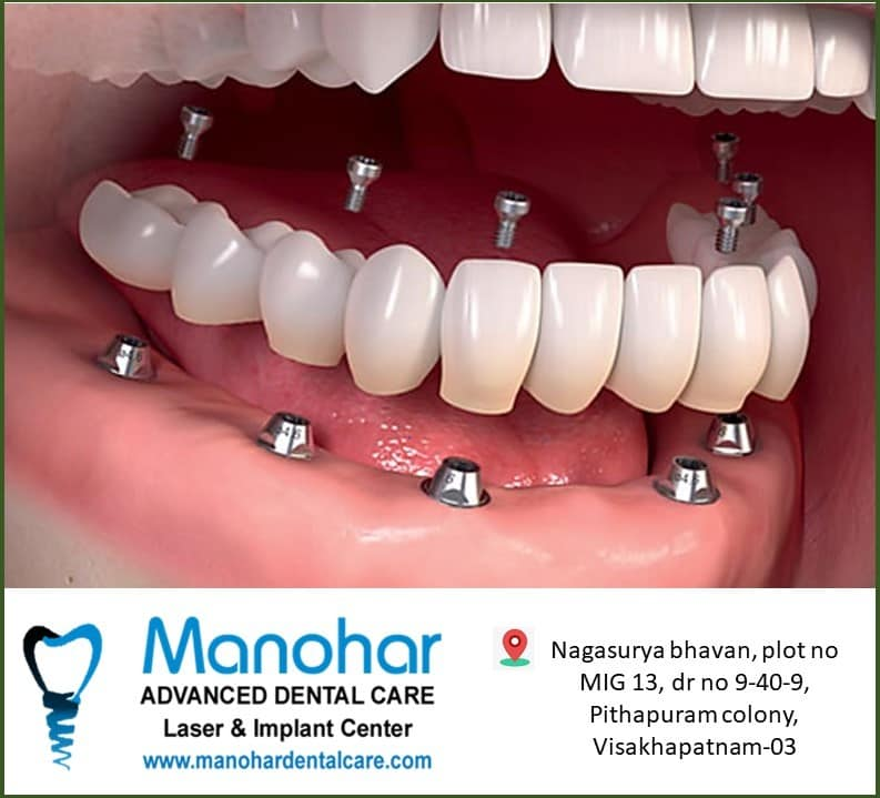 Manohar Dental Clinic best dental doctor in vizag