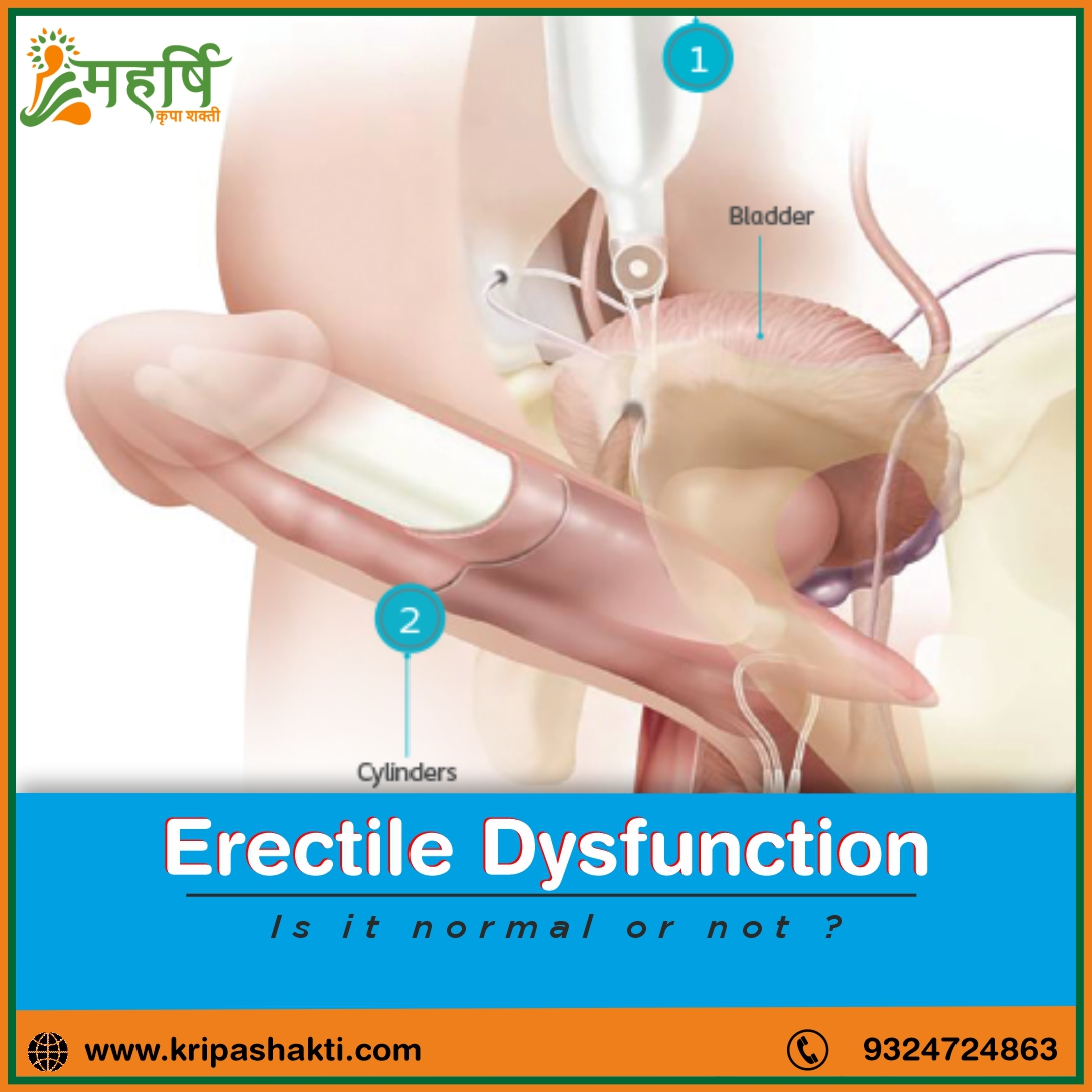 Erectile Dysfunction - Is It Normal?