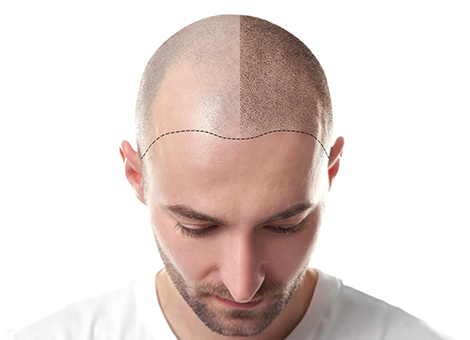 Hair Transplant in Hyderabad | Best Hair Transplant Clinic in Hyderabad