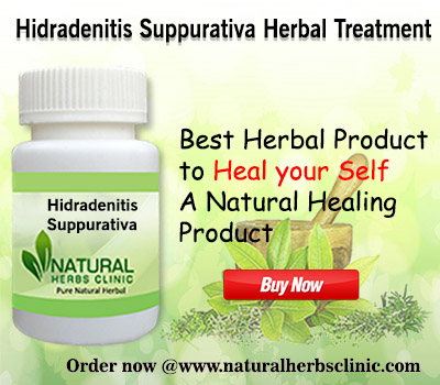 Natural Remedies for Hidradenitis Suppurativa