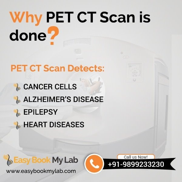 Book now PET CT Scan in Delhi on discounted price