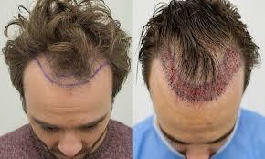 Hair Transplant Doctor
