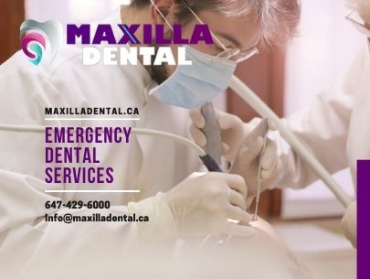 Maxilla Dental Emergency Dental Services in Toronto