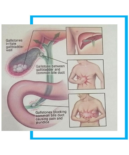 Laparoscopic Gallbladder Removal Surgery in New Delhi India