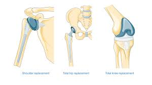 What are Joint Replacement Surgeries?
