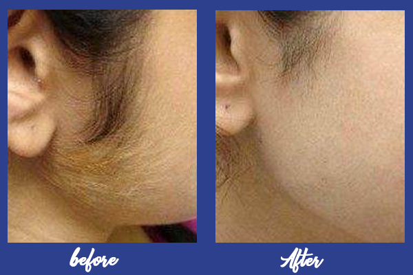 Laser hair removal in Vizag